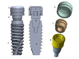 Nobel Active Implant Fixture And Locator Stud Attachment