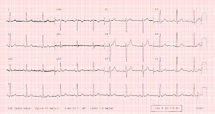 Ecg Chart Examples Ecglibrary Com Normal Adult 12 Lead Ecg