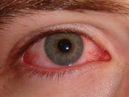 infective conjunctivitis pink eye