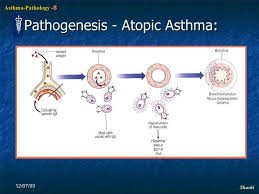 Asthma Pathophysiology Flow Chart 9 Heydes Syndrome Is A Syndrome Of Gastrointestinal
