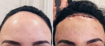 32 year old female forehead reduction