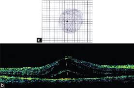 Resurrection Of The Amsler Chart In Macular Diseases Nassar