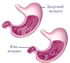 болезнь Язвенная болезнь