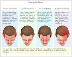 cluster headache location chart migraine remedies that really work migraine treatment