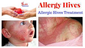 Allergy Hives - Allergic Hives Treatment - YouTube