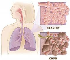 Transforming acute care in chronic obstructive pulmonary disease  COP