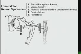 lower motor syndromes flashcards