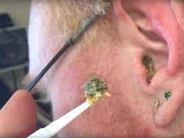 ear wax removal earwax removal 2 australian home ideas home renovation ideas india