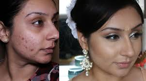 makeup foundation routine cover acne cystic acne blemishes tutorial makeup with raji you