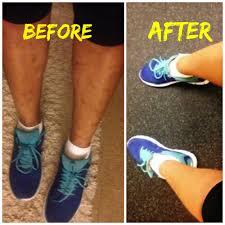body makeup to conceal dark spots on legs