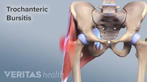 The torso or trunk is an anatomical term for the central part, or core, of many animal bodies (including humans) from which extend the neck and limbs. Hip Trochanteric Bursitis