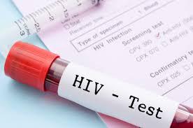 Hasil gambar untuk hiv palsu