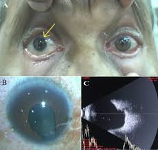 Phacoemulsification In Small Eyes