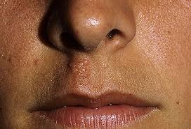 cold sores pictures of what they look like