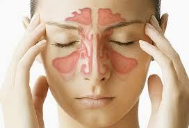 sinus infection sinusitis 18 signs