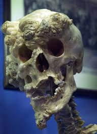 the skull of joseph merrick often known as the elephant man the skull of joseph merrick often known as the elephant man