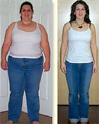 WEIGHT LOSS SURGERY BEFORE AND AFTER - burmes fede
