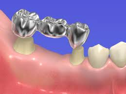 Exploring the Differences Between Dental Implants and Dental ...