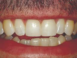 Teeth Setting Direct Restorations In A Compromised Setting Oral Health Group