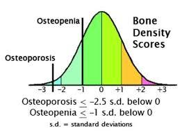 Pin On Ota Pintrest Ostenoporosis