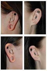 gauged ears before and after. earlobe stretching   gauging and will they close on their own by dr. philip young of bellevue seattle: gauged ears before after