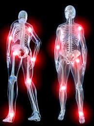 Image result for कमर दर्द\जोड़ों का दर्द