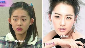 go ara plastic surgery before after 2