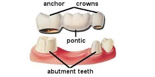 Abutment Definition Dental Bridges A Complete Overview