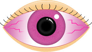 Doctors Note For Pink Eye How To Treat Pink Eye Infections Polysporin Canada