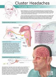 pain management for cluster headaches