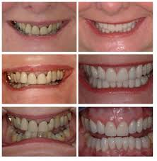 Deep Bite Treatment Advanced Dentistry