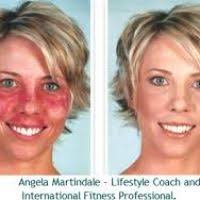 best makeup to cover redness and acne brownsvilleclaimhelp best foundation for rosacea