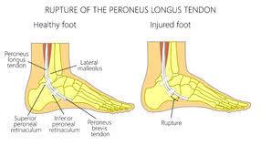 peroneus longus sehne