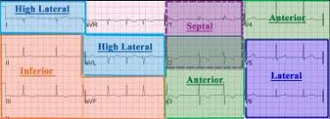 Ekg Lead Placement Chart Electrocardiography Overview Ecg Indications And