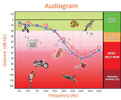 Hearing Banana Chart Understanding Your Audiogram Australian Audiology Gold