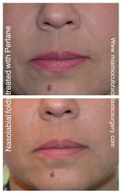 11 best Juvederm images on Pinterest | Facials, Cosmetics and ...