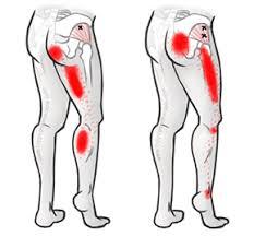 Pijn in rechterbil en been