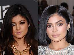 lip fillers what are they and what do