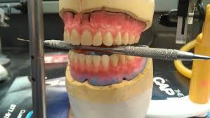 teeth setting mandibular anterior posterior teeth setup maria ramoss eportfolio
