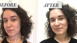 i stopped popping my pimples for a month before and after photos allure