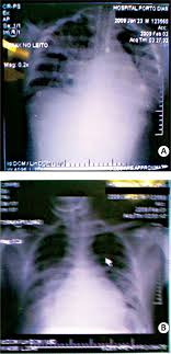 myocarditis associated plasmodium vivax malaria a case report figures 2a and 2b chest radiography showing cardiomegaly and acute edema of the lung in a patient plasmodium vivax malaria