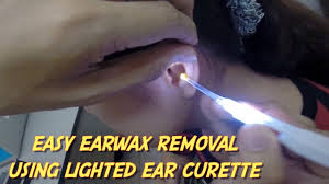 Lighted Ear Curette Kit Easy Earwax Removal Using Lighted Ear Curette