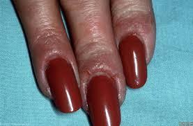Allergie nagellak symptomen