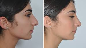 It is a surgery of the nose aimed to change its size, shape, structure, and anatomy. How Much Does Rhinoplasty Cost