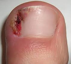 an ingrown toenail on the large toe of the right foot