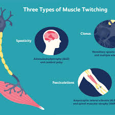 muscle twitches ms and other possible