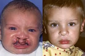 cleft lip repair cleft lip correction before after photos ernesto j ruas md