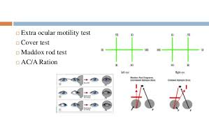 Examination Protocol For Binocular Vision