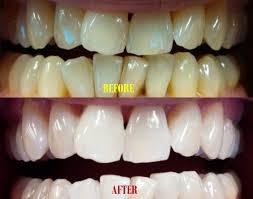 teeth whitening with baking soda