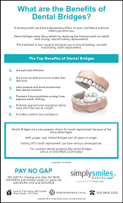 What are the Benefits of Dental Bridges? | Simply Smiles Dental